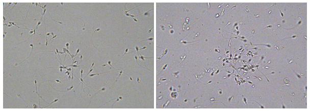aglutynaty plemników widziane w mikroskopie świetlnym w powiększeniu 200x