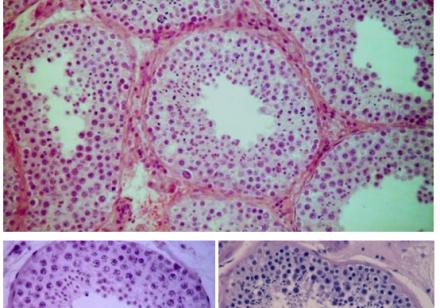 ludzkie kanaliki plemnikotwórcze u dorosłego mężczyzny w pełni rozwiniętą spermatogenezą